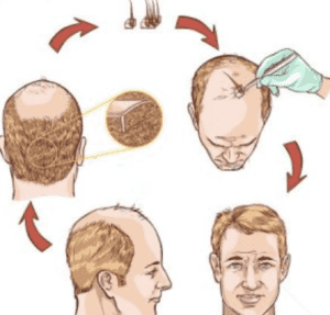 عمليات زراعة الشعر - علاج تساقط الشعر