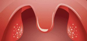 اللوزتين الحلقتين palatine tonsils - التهاب اللوزتين