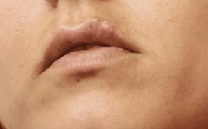 في خلال 48 ساعة من بداية الألم تظهر تكيسات صغيرة ممتلئة بسائل - قروح البرد (الهربس البسيط) - فيزيتا مجانية