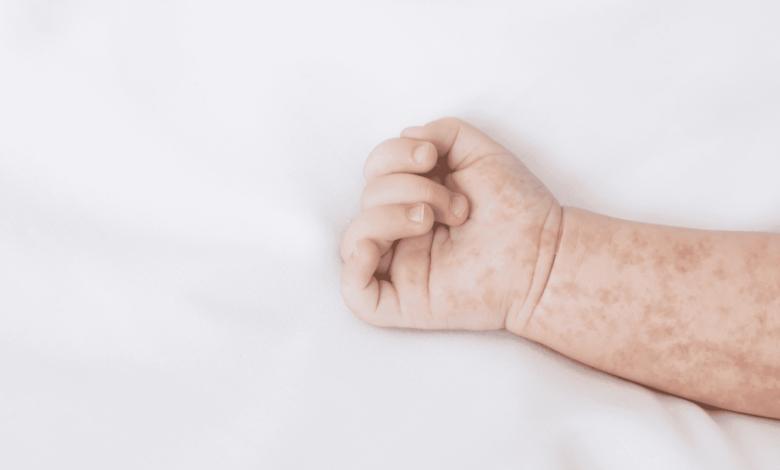 الطفح الجلدي عند الاطفال   7 علامات تستلزم اللجوء ل مستشفى طواريء للاطمئنان