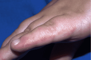 مرض اليد والقدم والفم - تكيسات مملوءة بسائل على اليدين - nhs
