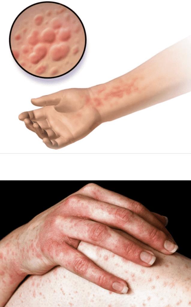 تظهر الارتيكاريا في شكل أشكال دائرية محددة صغيرة او كبيرة مرتفعة عن سطح الجلد أو بثور حمراء صغيرة وفي كل الأحوال تصاحبها حكة