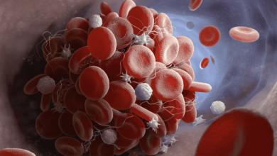 لقاح استرازينيكا ضد كوفيد-19 | كيف تحدث الجلطة الدموية مع السيولة؟ ولماذا يُمنع اسبرين معها؟