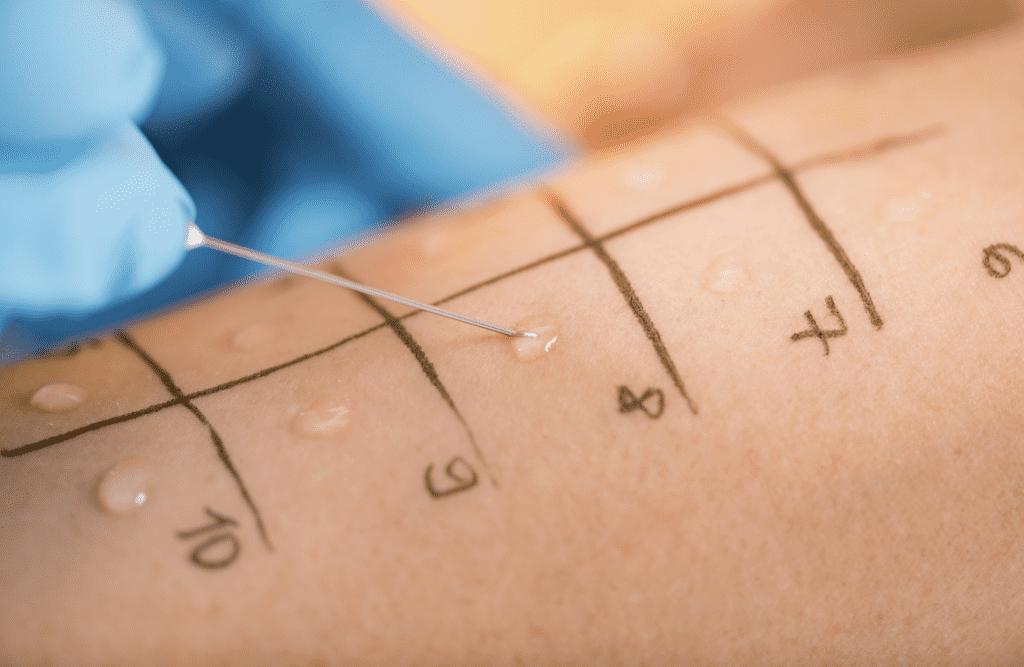 يتم وضع قطرة من كل مادة يحتمل أن تسبب الحساسية داخل كل مربع٬ ثم وبواسطة إبرة يتم وخز الجلد برفق من خلال كل قطرة من هذه القطرات - اختبار الحساسية- طب اليوم