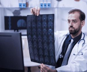 هناك بعض الأعراض التي تجعل الاشعة المقطعية ضرورية بعد اصابات الرأس
