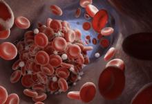 تحليل دي دايمر D-dimer | هل يؤكد وجود الجلطة الدموية؟ و هل نعتمد عليه لتناول مضادات التجلط؟
