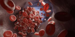 الجلطة الدموية ومن مكوناتها الأقراص الحمراء (كريات الدم الحمراء) و الخيوط البيضاء هي بروتين الفايبرين