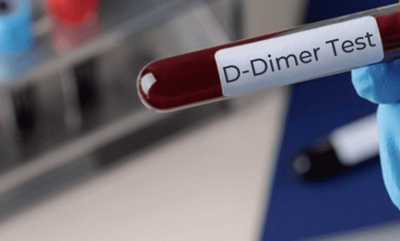 استمرار ارتفاع دي دايمر d dimer لأشهر بعد التعافي من كوفيد-19.. فما السبب؟ - تفاصيل الدراسة