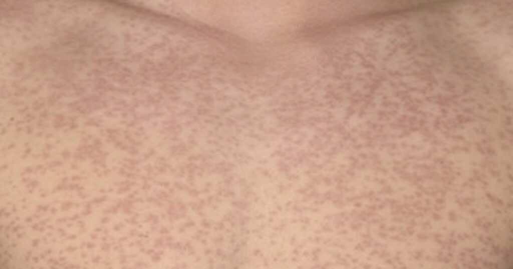 طفح جلدي ظهر بسبب استخدام مضادات حيوية تحوي اموكسيسيللين في حالة الإصابة الحمى الغددية