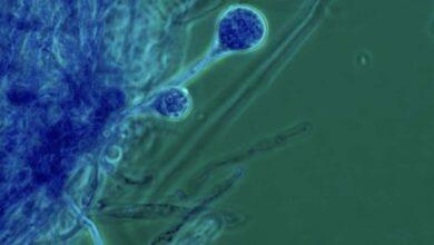 الفطر الاسود | الأشخاص الأكثر تعرضا (9 حالات) - العفن الاسود - داء الغشاء المخاطي - كوفيد-19