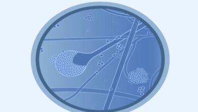 نقص علاج العفن الاسود في الهند وسط ظهور حالات جديدة مصاحبة لعدوى كوفيد-19