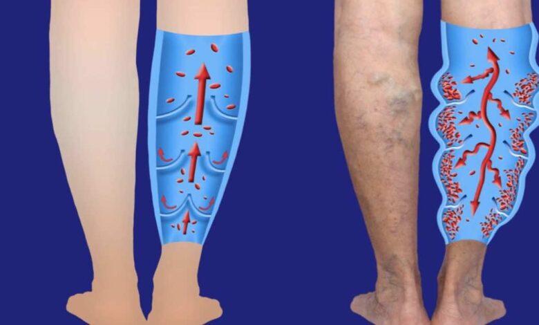 كيف تحدث دوالي الساقين و 5 أعراض تستلزم الفحص الطبي - التشخيص و علاج الدوالي