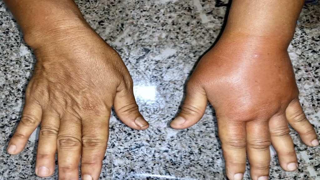 تسبب متلازمة تسرب الشعيرات الدموية المجموعية تورم في بعض مناطق الجسم