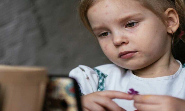 كيف يظهر الجديري المائي عند الاطفال (بالصور)؟ وكيف ينتقل؟