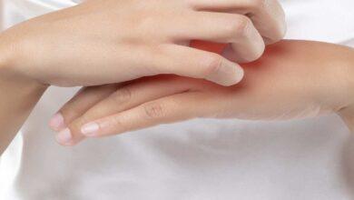 علاج الاكزيما التأتبية | 8 خطوات بحسب حدة الأعراض