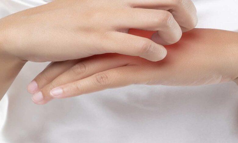 علاج الاكزيما التأتبية   8 خطوات بحسب حدة الأعراض