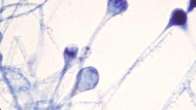 3 حالات من الفطر الاسود في منطقة الخليج العربي -وزارة الصحة