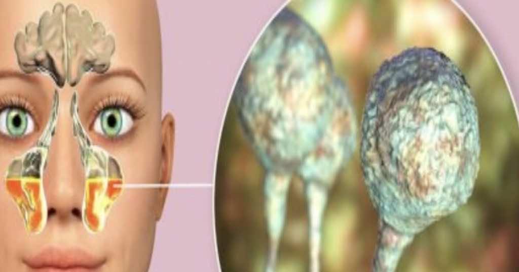 التهاب الجيوب الانفية بعدوي الفطر الاسود
