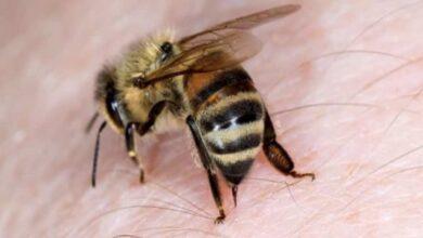 لسعة النحل - لدغة الحشرات | 7 اسعافات أولية