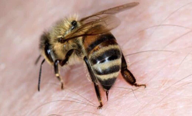 لسعة النحل - لدغة الحشرات   7 اسعافات أولية