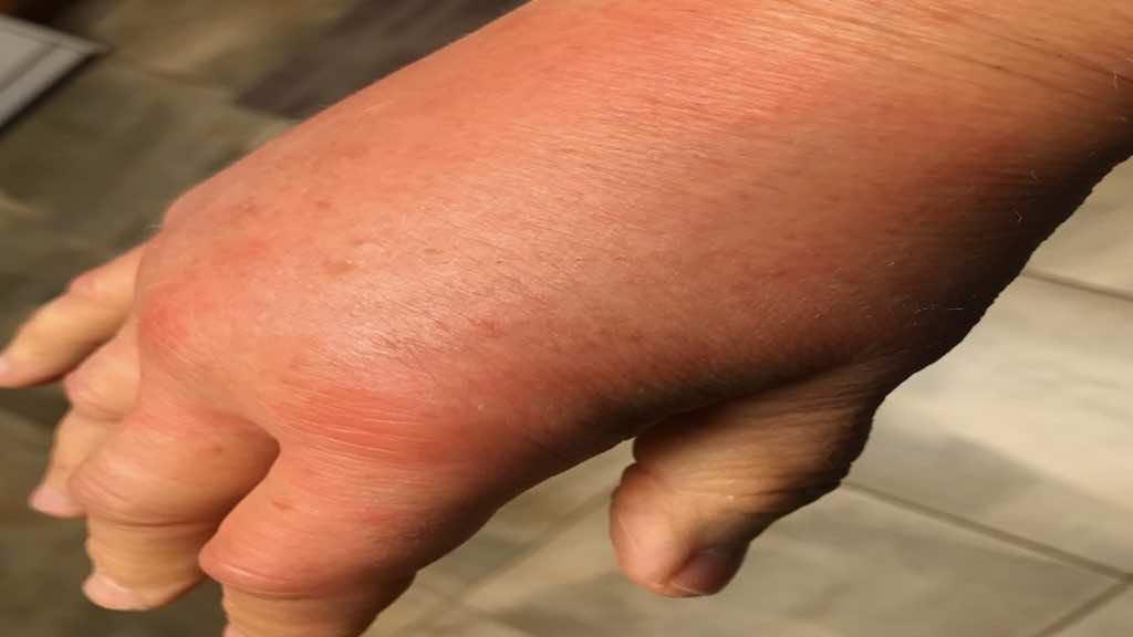 لدغة دبور تسببت في تورم بالغ في اليد