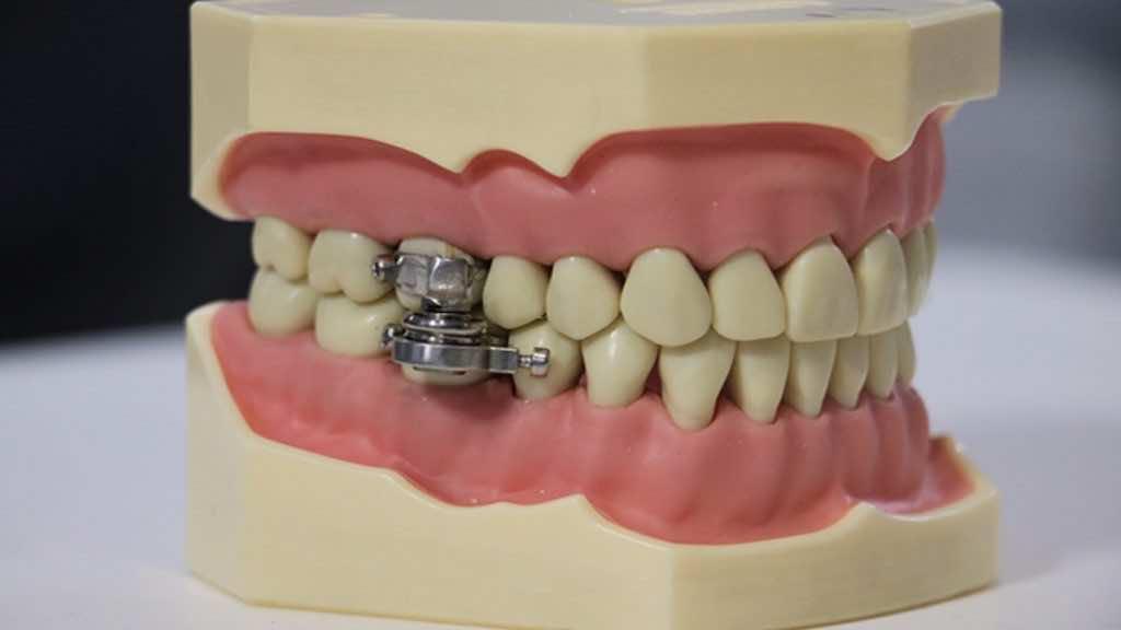 بدلا من جراحات التخسيس   مغناطيس يثبت بالاسنان لانقاص الوزن
