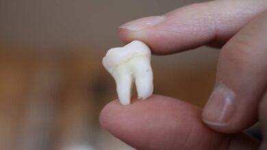ضرس العقل | 6 حقائق علمية مدهشة- طب الاسنان