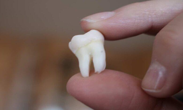 ضرس العقل   6 حقائق علمية مدهشة- طب الاسنان