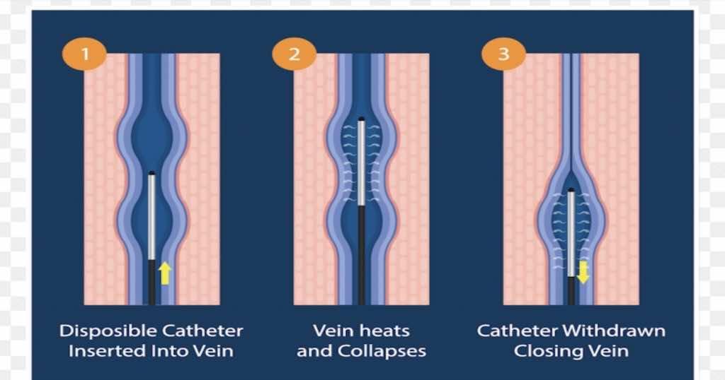 علاج الدوالي باستخدام الحرارة لإغلاق الأوردة المتأثرة Radiofrequency ablation (في رقم 3 اغلاق الوريد مع سحب جزء الجهاز الذي يصدر الترددات الموجية التي تصدر الحرارة)