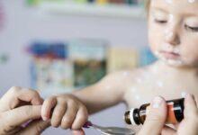 احذر أن تعطي طفلك ايبوبروفين لعلاج الجديري المائي لهذا السبب