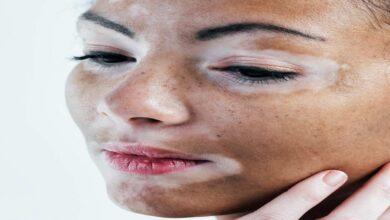 ما هو علاج البهاق؟ 8 خيارات علاجية