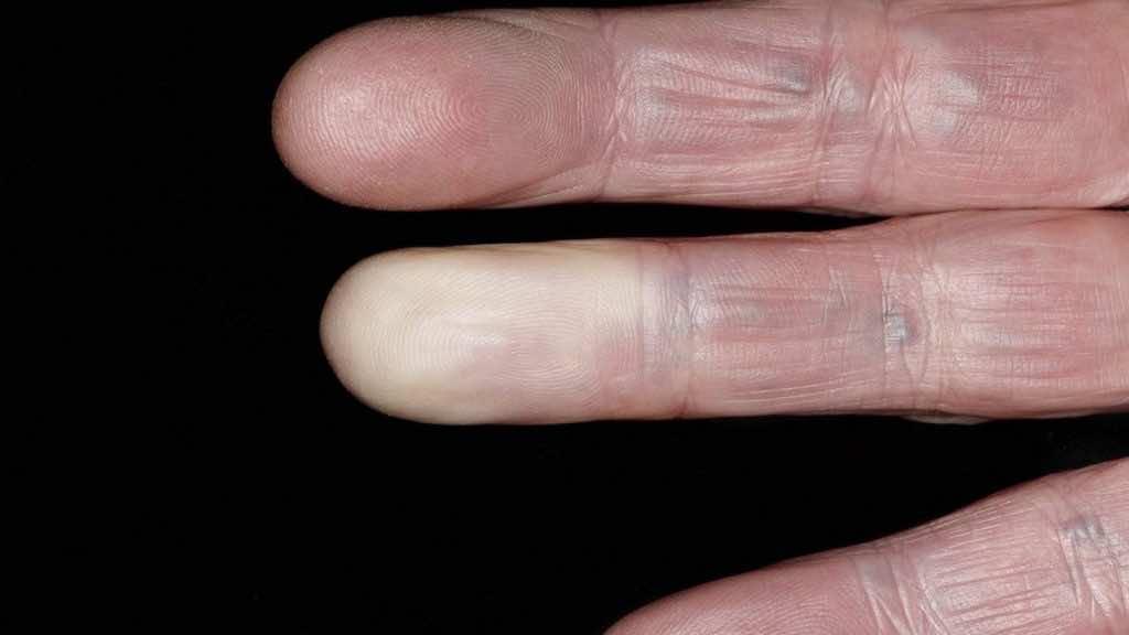 تغير لون الاصابع إلى اللون الأبيض أو الباهت