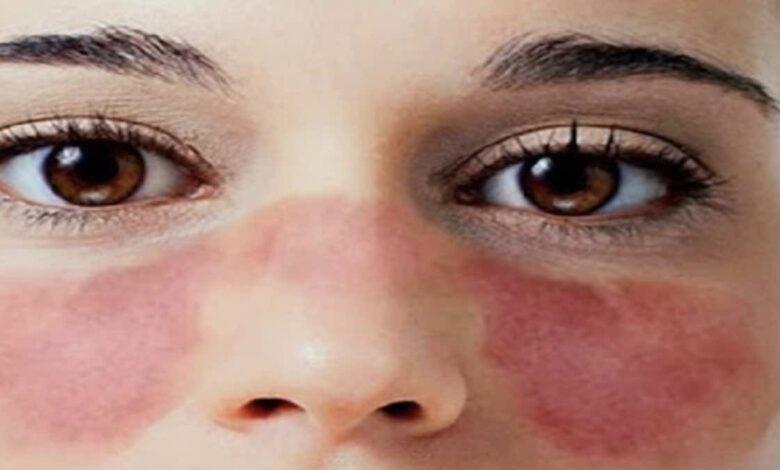 3 أعراض أساسية ل مرض الذئبة الحمراء، وكيف يتم تشخيصه؟