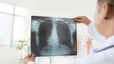 بريطانيا تبدأ تقديم دواء جديد ناجح لمرضى سرطان الرئة
