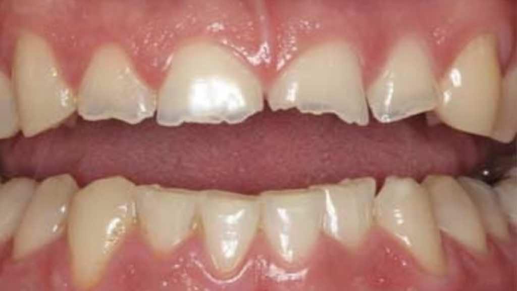تأثير صرير الاسنان على الاسنان