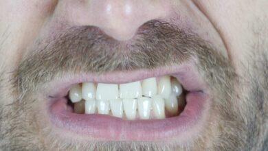 صرير الاسنان | كيف يحدث؟ و 6 أسباب تزيد احتمالات حدوثه